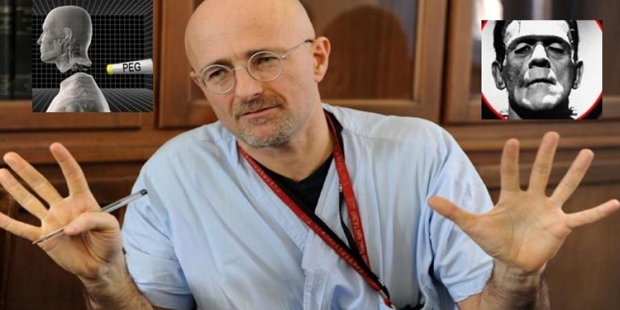 Επιστήμονας έτοιμος για μεταμόσχευση ανθρώπινου κεφαλιού