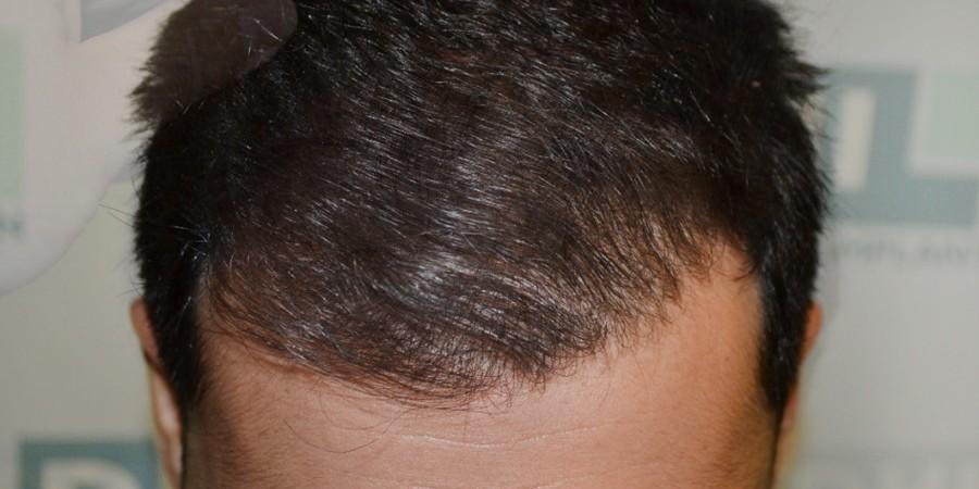 Παράδεισος» για τη μεταμόσχευση μαλλιών η Κωνσταντινούπολη  3a9114fd093